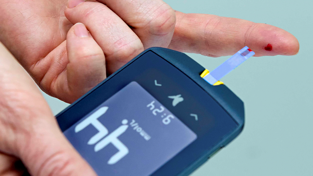 Blood glucose testing. Is it valuable or not?